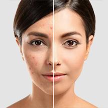 Acne & Acne scar solutions