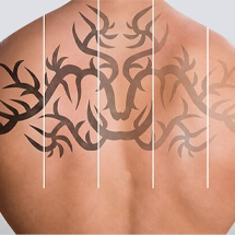 Men Laser tattoo removal