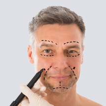 Men Fractional RF for Face Lifting, Acne Scar and Rejuvenation