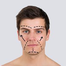 Men Face Lift by Thread Technology